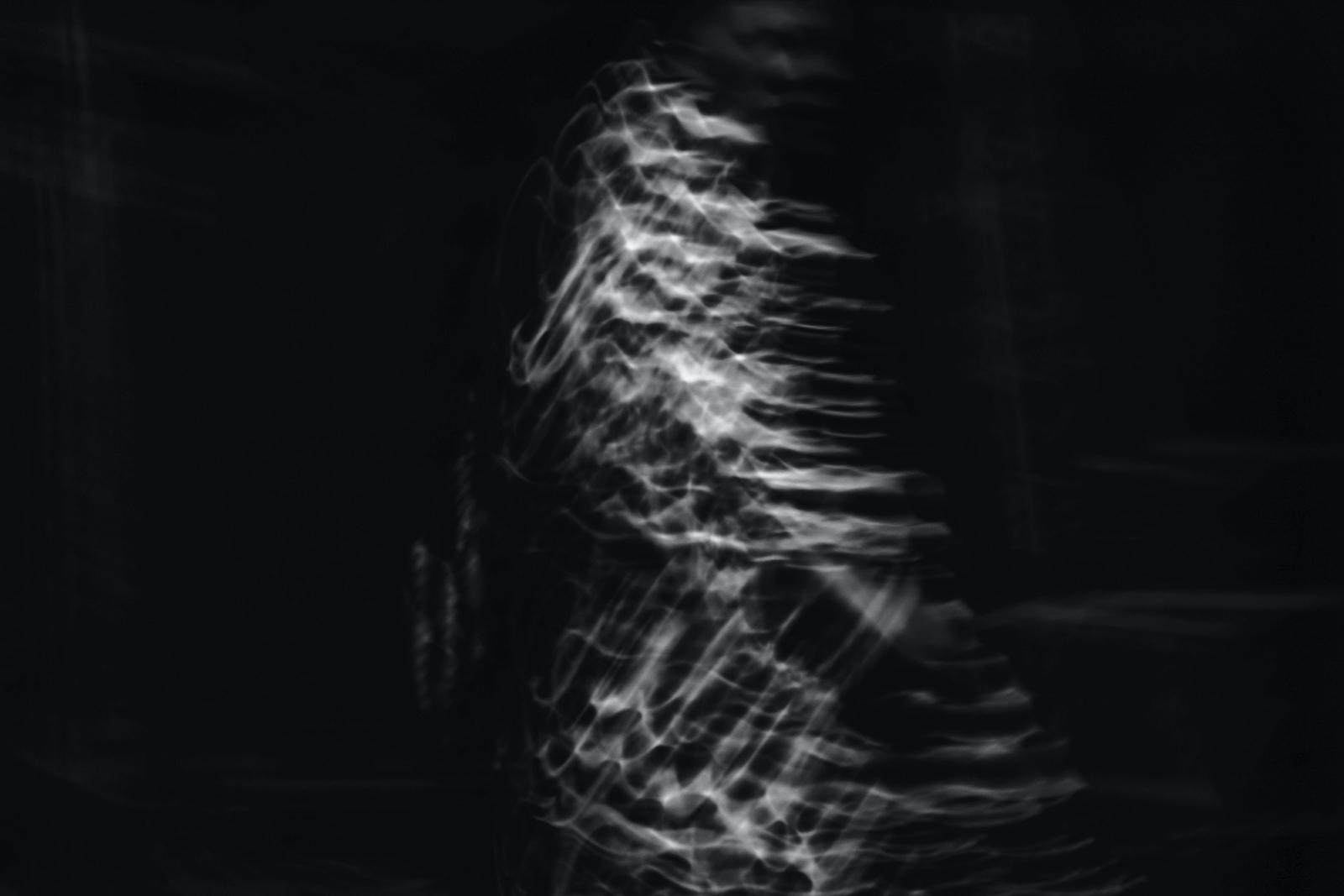 Magnetkamera vid ryggsmärta –varför är det inte bara bra?