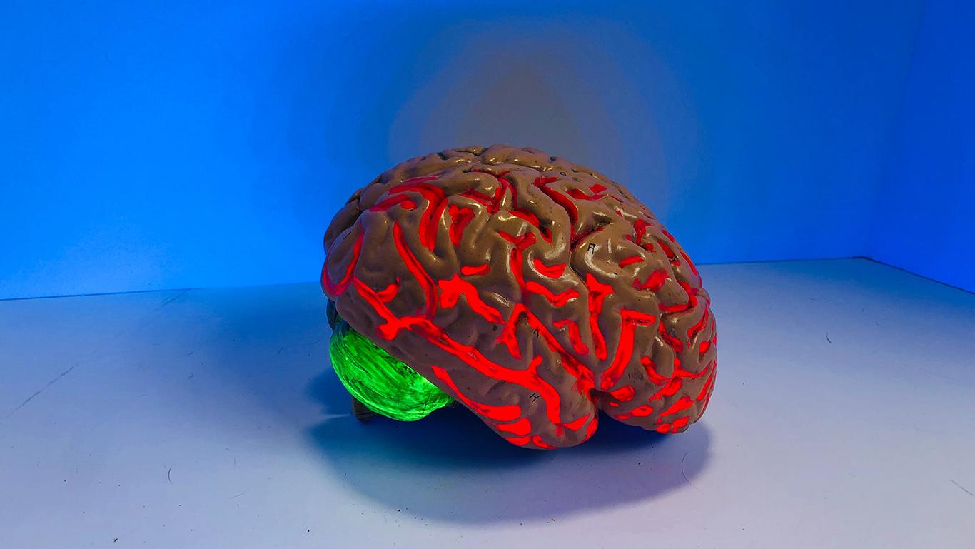 Hur hjärnan påverkas av fysisk aktivitet