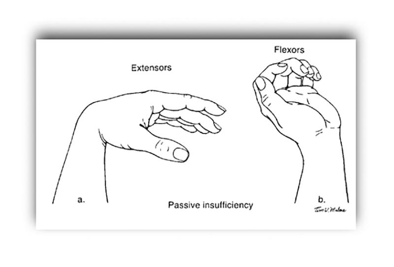 Vad är bäst för handlederna i pressar